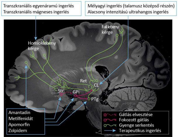 A tudatzavarok hátterében az agytörzstől (PTg) a köztiagyon (CL) át az agykéregbe vetülő pályák működésének zavara áll.