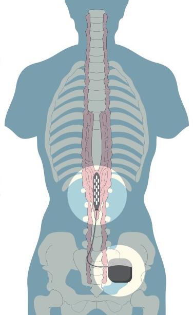 A gerincvelő felszínére egy több elektródát tartalmazó lapot helyeznek, melyet a csípőhöz illesztett stimulátor működtet. Az elektródák aktiválódása programozható, így az eszköz elvileg különféle mozdulatokat tehet lehetővé