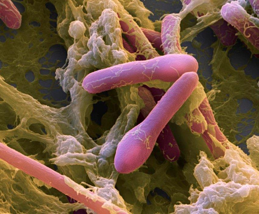 A Clostridium botulinum baktérium színezett elektronmikroszkópos képe